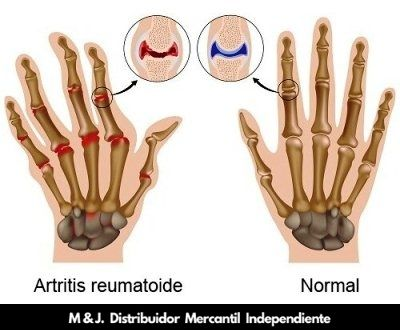artritis reumatoides tratala con undú de omnilife